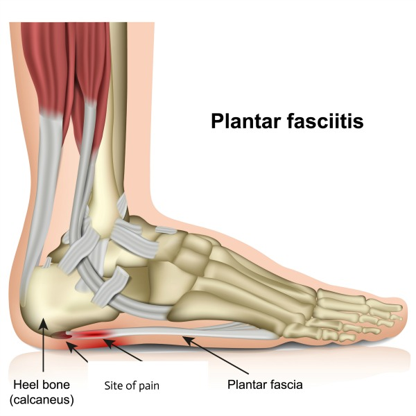 What is my plantar fascia and why is it painful?